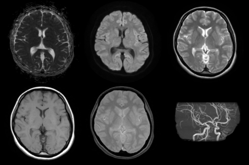 MRI1.5テスラ